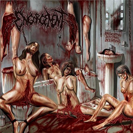 Excruciating Intestinal Lacerations